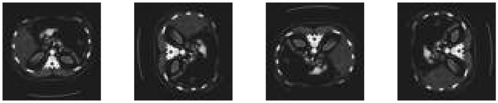 AbdomenCT  oryginalny i obrócony o  90°, 180° i 270°