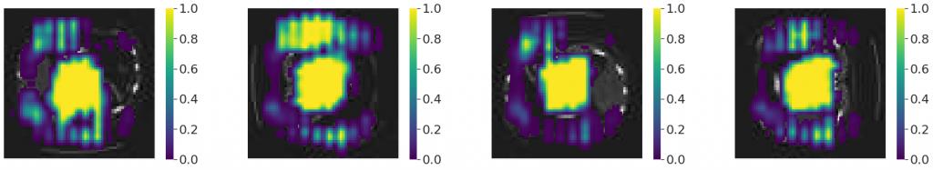 Occlusion sensitivity dla AbdomenCT  oryginalnego i obróconego o  90°, 180° i 270° - rozmiar ramki 16 x 16 pikseli