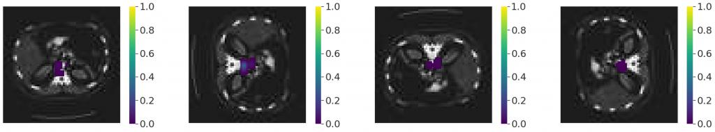 Occlusion sensitivity dla AbdomenCT  oryginalnego i obróconego o  90°, 180° i 270° - rozmiar ramki 8 x 8 pikseli