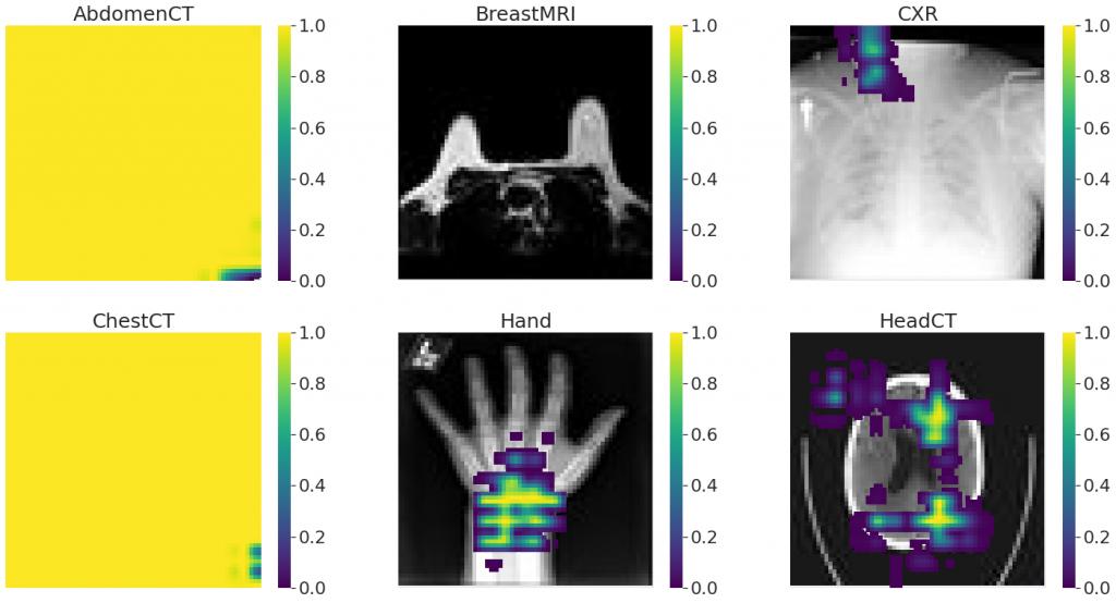 Occlusion sensitivity najlepszego modelu dla poszczególnych klas (rozmiar ramki 16 x 16 pikseli)