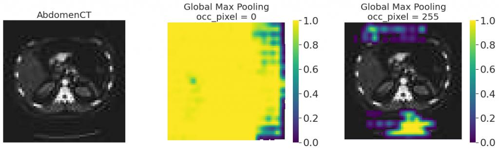 Occlusion sensitivity modelu Global Max Pooling - wyniki dla ramki przesłaniającej czarnej i białej