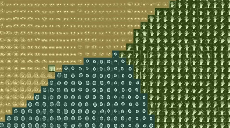 Powiększenie fragmentu mozaiki t-SNE 132 x 132 obrazy - przykład Hand pośród AbdomenCT
