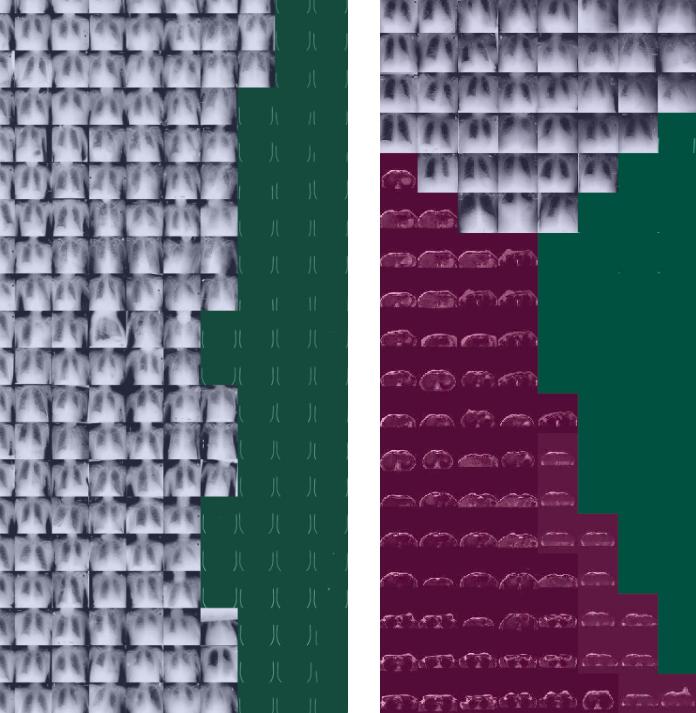 Powiększenie fragmentu mozaiki t-SNE 132 x 132 obrazy - przykłady HeadCT, które znajdują się w oddaleniu od większości przypadków HeadCT