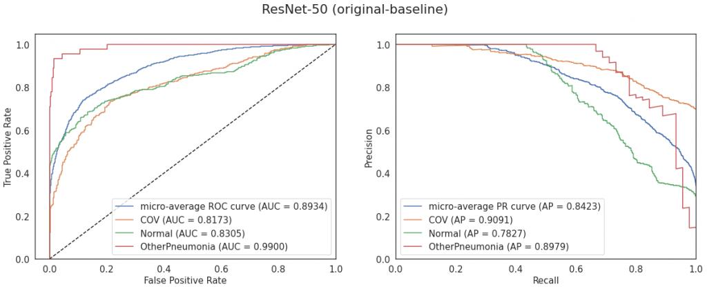 Krzywe ROC i PR dla modelu ResNet-50 (konfiguracja original-baseline)
