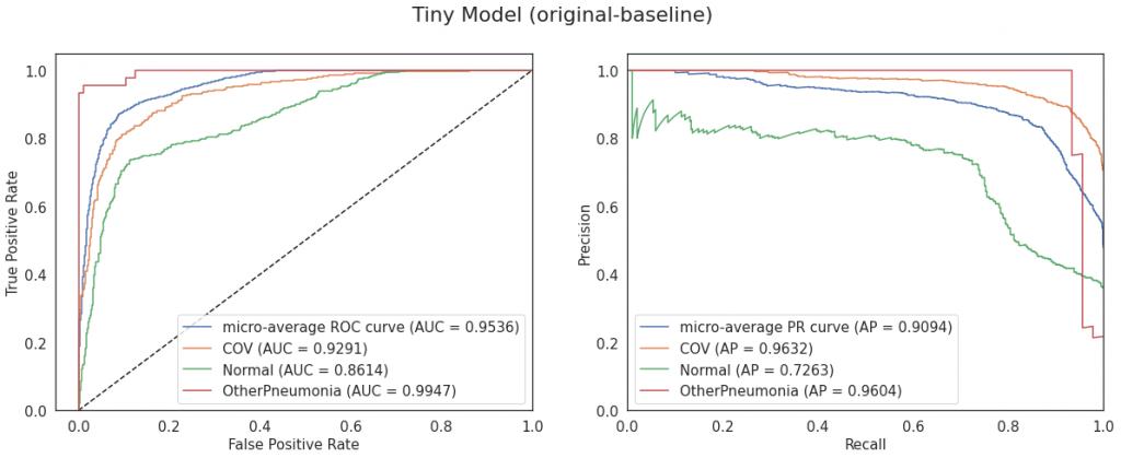 Krzywe ROC i PR dla modelu Tiny (konfiguracja original-baseline)