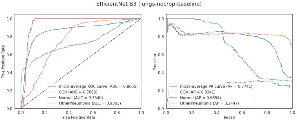 Krzywe ROC i PR dla modelu EfficientNet B3 trenowanego od zera (konfiguracja lungs-baseline)