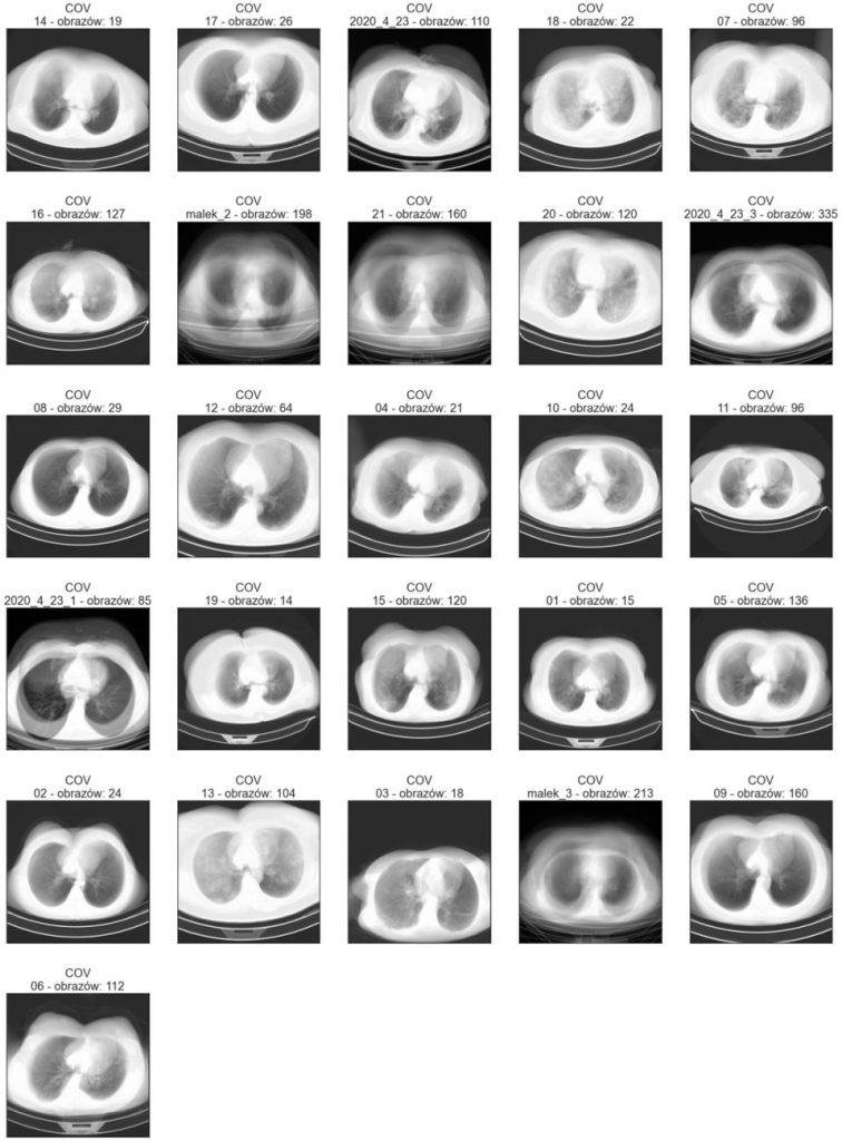 Średnie obrazy poszczególnych katalogów klasy COV - zbiór treningowy
