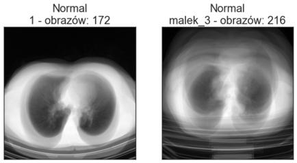 Średnie obrazy poszczególnych katalogów klasy Normal - zbiór walidacyjny