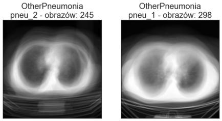 Średnie obrazy poszczególnych katalogów klasy OtherPneumonia - zbiór treningowy