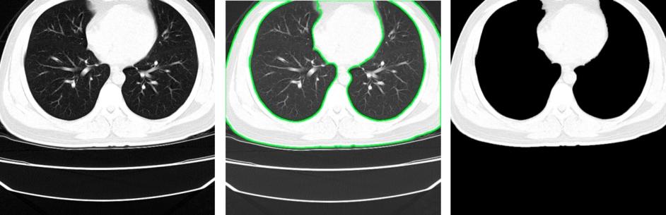 Przykład obrazu, w którym pacjent jest zbyt blisko krawędzi i w efekcie razem z tłem są usuwane również płuca