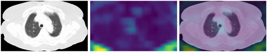 GradCAM dla modelu LargeT - obraz bez tła przycięty do pacjenta, heatmapa oraz heatmapa nałożona na obraz