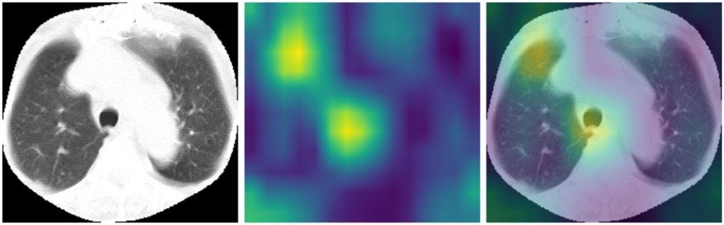 GradCAM dla modelu LargeT - obraz z wysegmentowanymi płucami i przycięty, heatmapa oraz heatmapa nałożona na obraz