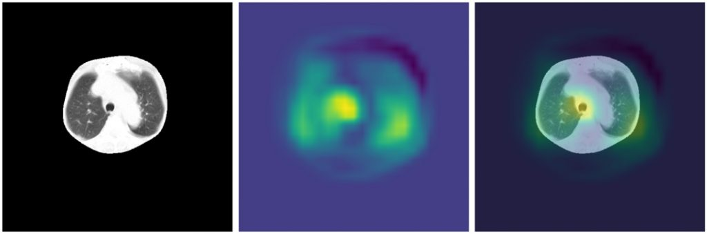 GradCAM dla modelu LargeT - obraz z wysegmentowanymi płucami, heatmapa oraz heatmapa nałożona na obraz