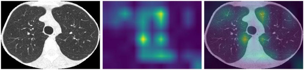 GradCAM dla modelu EfficientNet B3 - wagi None - obraz Normal z wysegmentowanymi płucami i przycięty, heatmapa oraz heatmapa nałożona na obraz