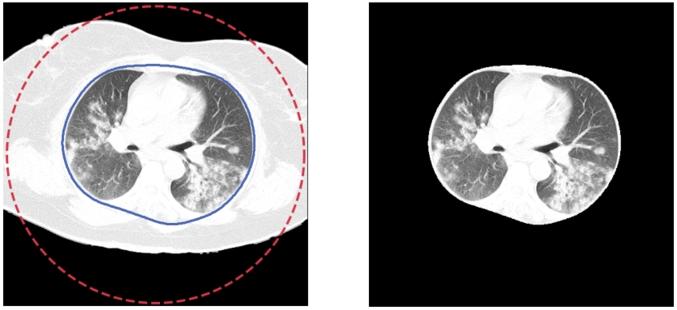 Przedstawienie działania funkcji active contour i wynikowy obraz z wysegmentowanymi płucami