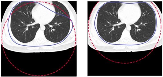 Przykład obrazu, dla którego active contour nie obejmuje poprawnie płuc i poprawiony obraz po przesunięciu początkowego okręgu