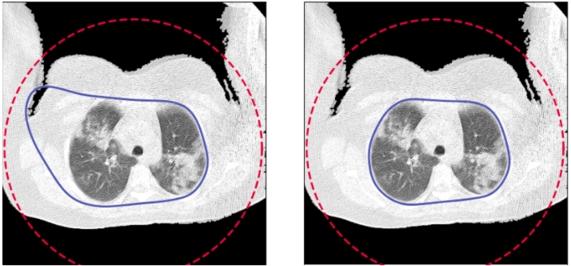 Przykład obrazu, dla którego active contour nie obejmuje poprawnie płuc i poprawiony obraz po zwiększeniu parametru alpha