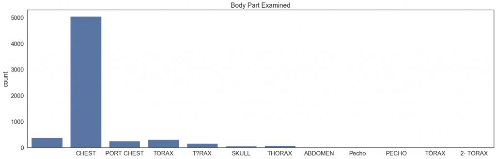 Body Part Examined - wykres słupkowy liczebności w zbiorze poszczególnych badanych części ciała Wartości słupków: PUSTE POLE - 381 PECHO - 3 2- TORAX - 7 T?RAX - 156 SKULL - 57 TORAX - 307 Pecho - 21 PORT CHEST - 249 THORAX - 77 TÒRAX - 5 CHEST - 5050 ABDOMEN - 21