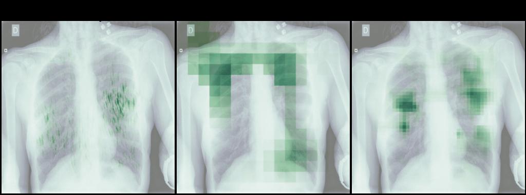 Heatmapy obrazu Negative for Pneumonia - wyniki Salincy, GradCAM i Occlusion