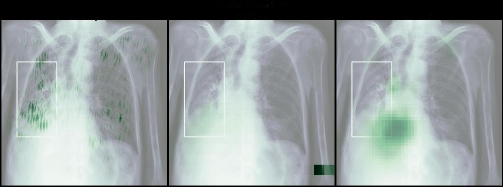 Heatmapy obrazu Atypical Appearance - wyniki Salincy, GradCAM i Occlusion