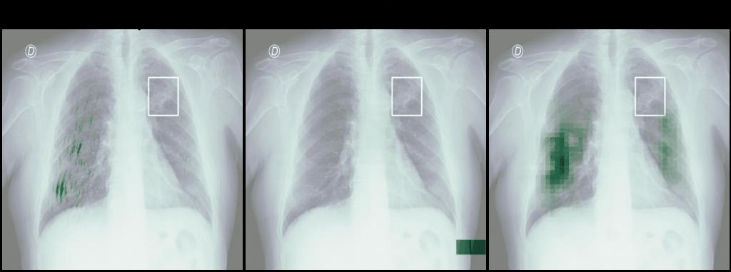 Heatmapy obrazu Indeterminate Appearance - wyniki Salincy, GradCAM i Occlusion