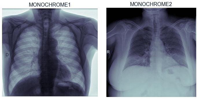 Photometric Interpretation - przykład obrazu MONOCHROME1 i obrazu MONOCHROME2